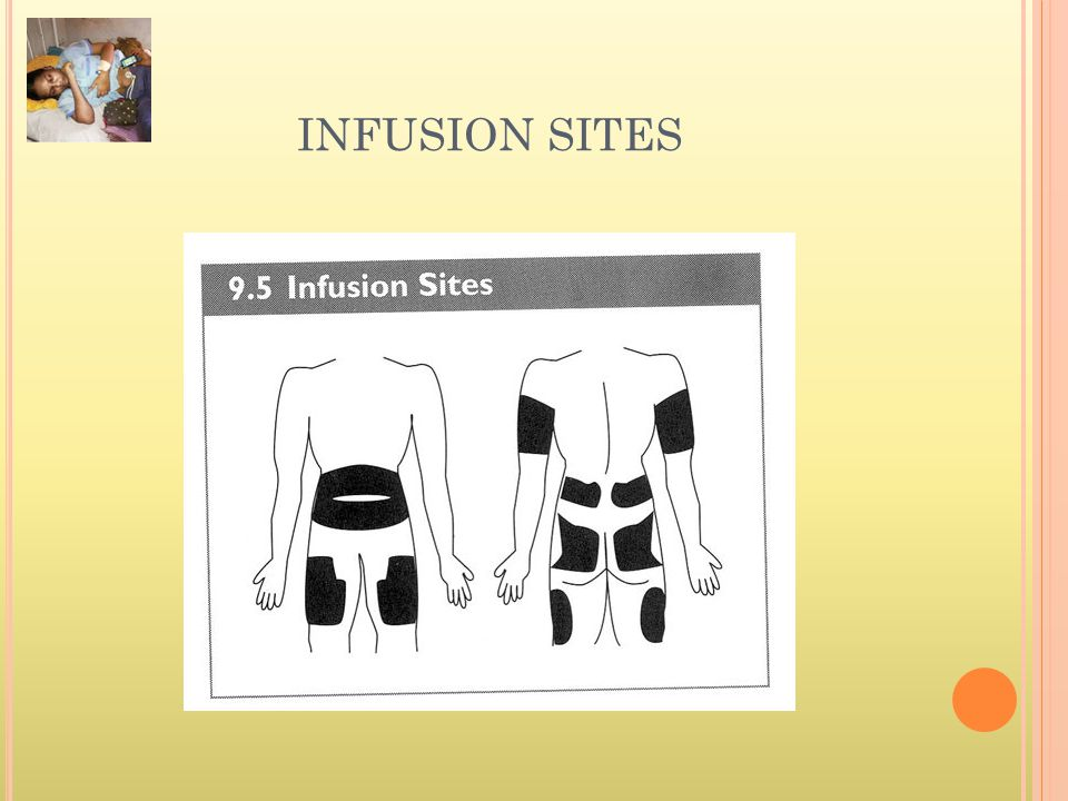 INFUSION SITES