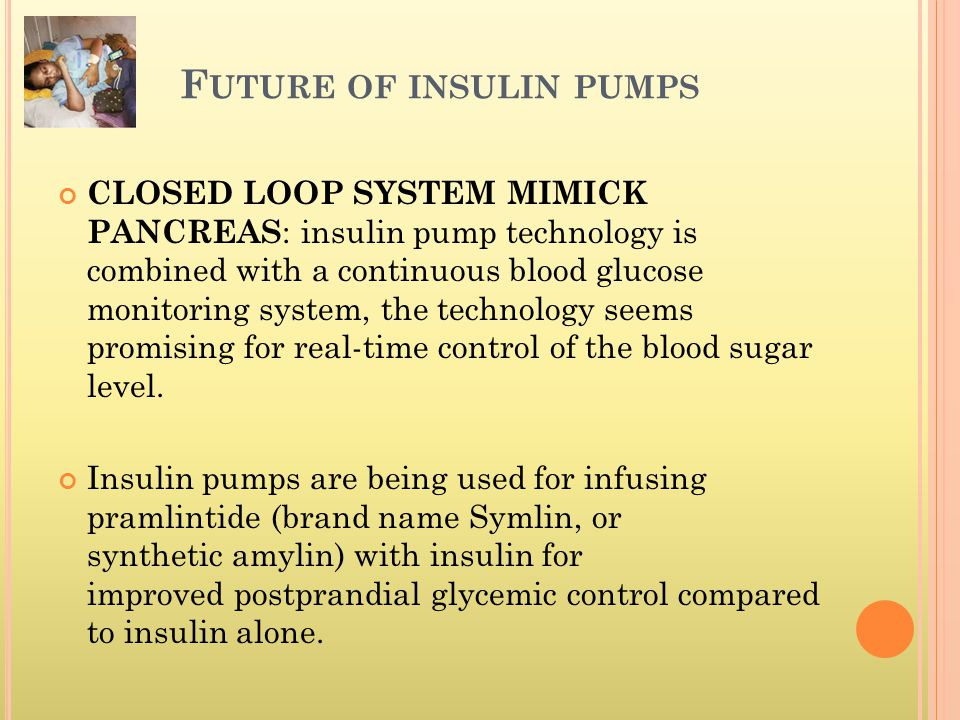 Future of insulin pumps
