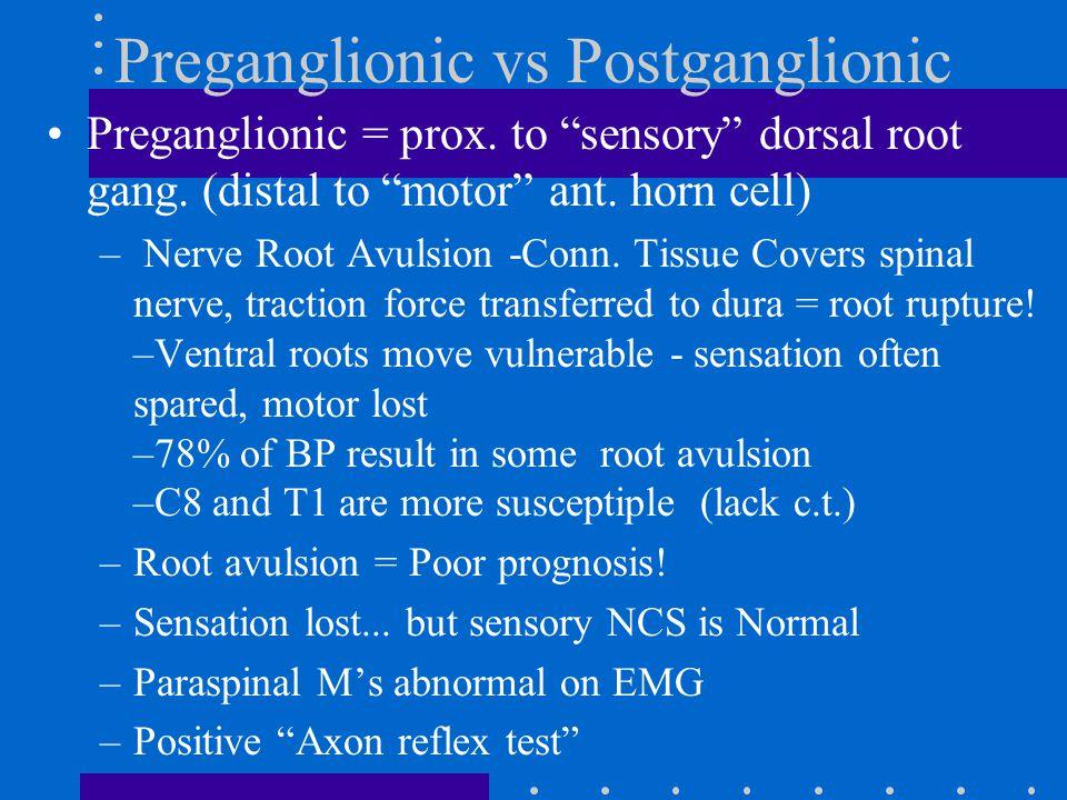 Preganglionic vs Postganglionic