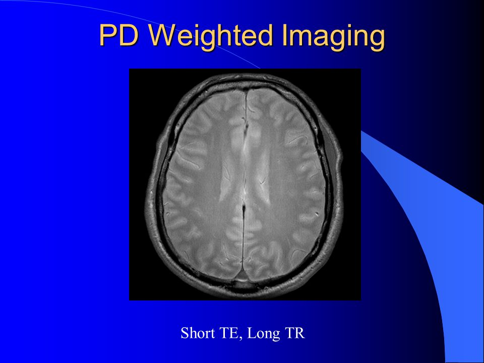 PD Weighted Imaging Short TE, Long TR