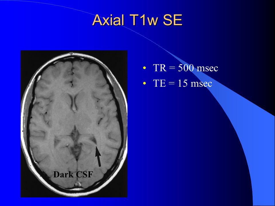 Axial T1w SE TR = 500 msec TE = 15 msec Dark CSF