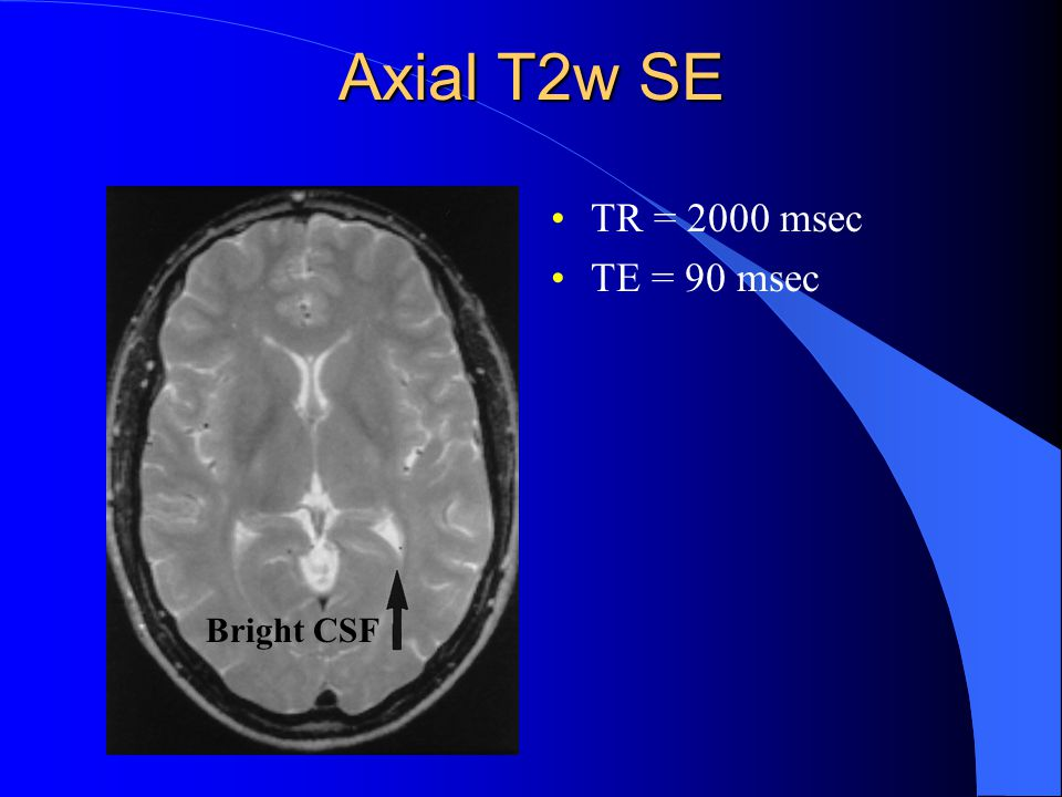 Axial T2w SE TR = 2000 msec TE = 90 msec Bright CSF