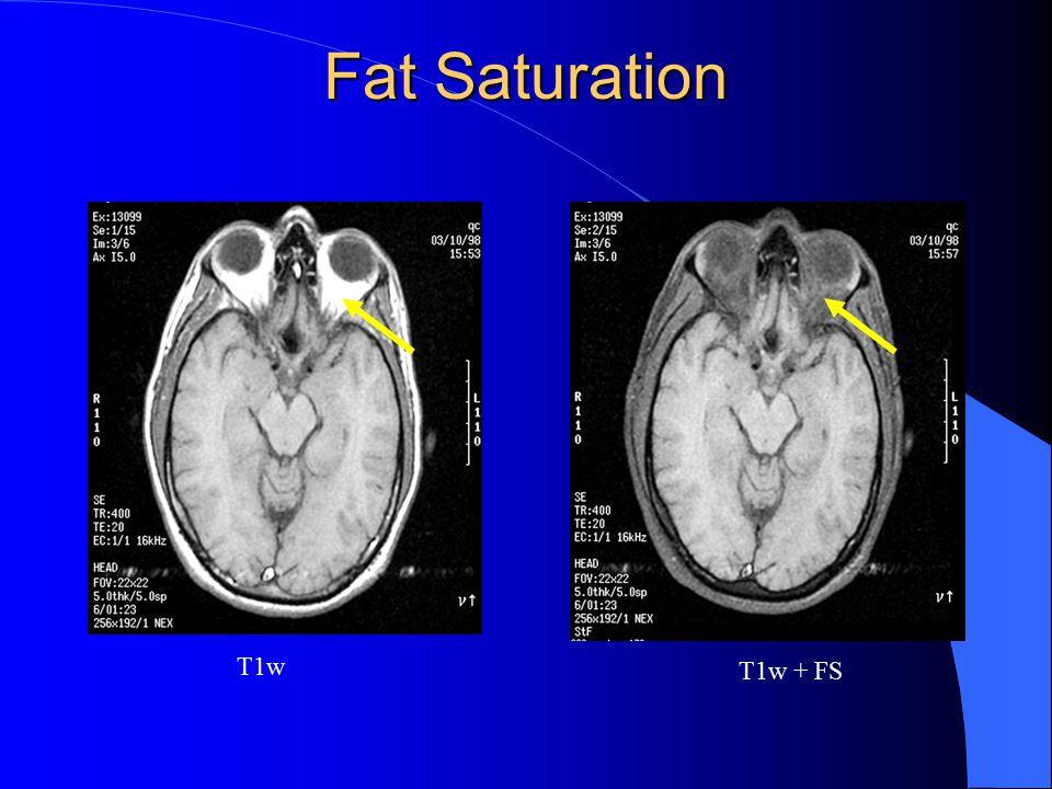 Fat Saturation T1w T1w + FS