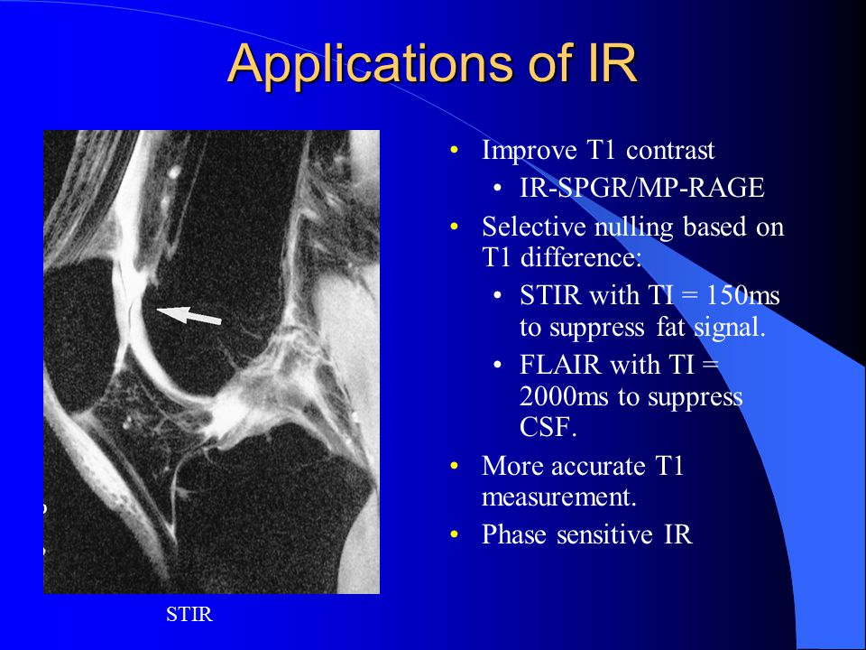 Applications of IR Improve T1 contrast IR-SPGR/MP-RAGE
