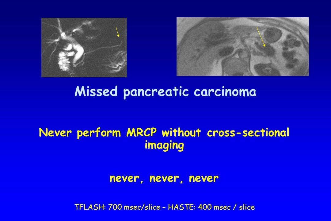 Missed pancreatic carcinoma