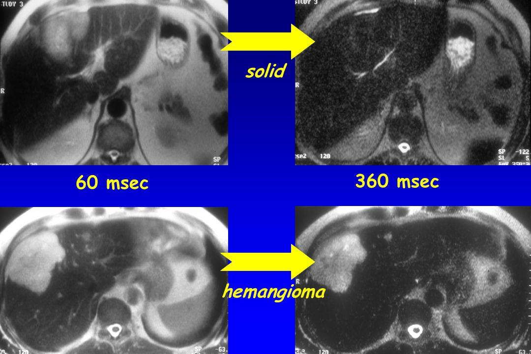 solid 60 msec 360 msec hemangioma