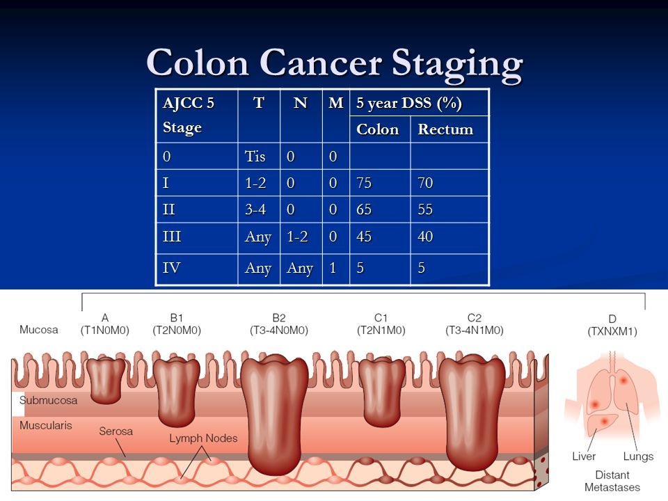 Colon Cancer Staging AJCC 5 Stage T N M 5 year DSS (%) Colon Rectum