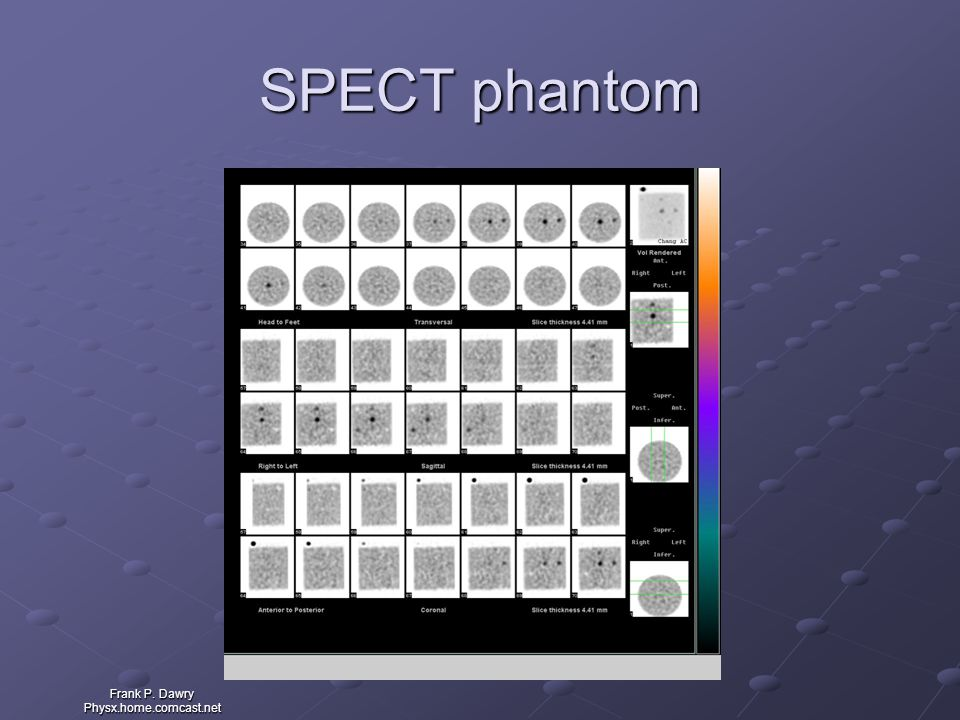 SPECT phantom Frank P. Dawry Physx.home.comcast.net