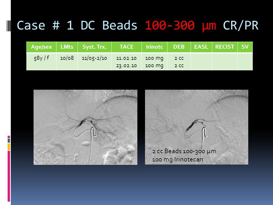 Case # 1 DC Beads 100-300 µm CR/PR