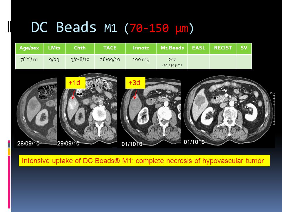 DC Beads M1 (70-150 µm) Age/sex. LMts. Chth. TACE. Irinotc. M1 Beads. EASL. RECIST. SV. 78 Y / m.