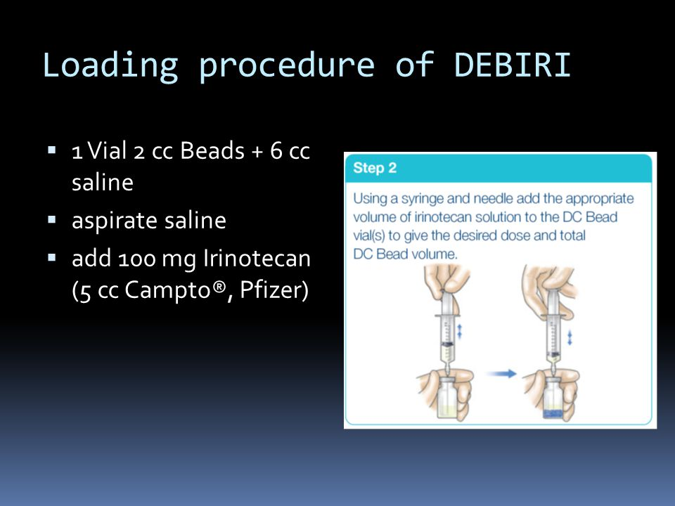 Loading procedure of DEBIRI