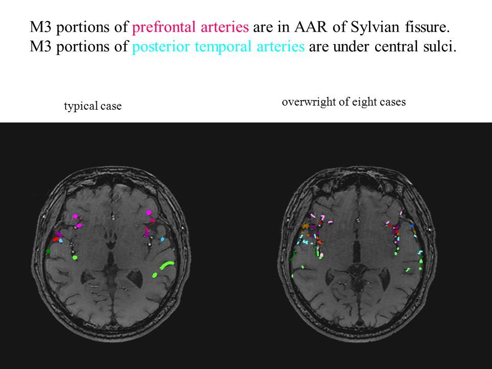M3 portions of prefrontal arteries are in AAR of Sylvian fissure