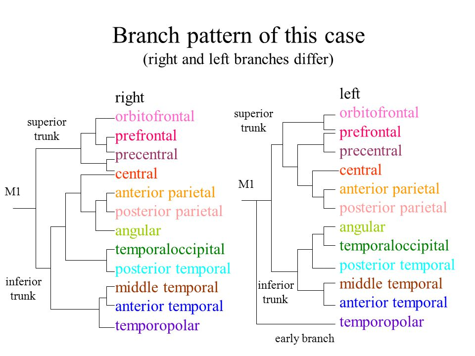Branch pattern of this case (right and left branches differ)