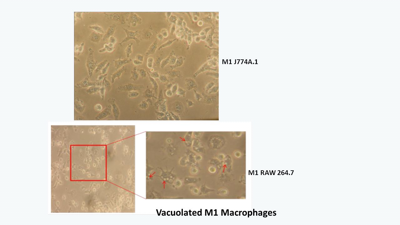 Vacuolated M1 Macrophages