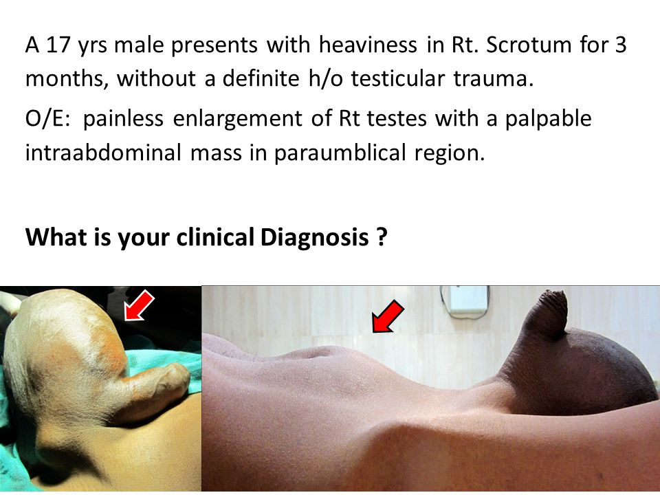 What is your clinical Diagnosis