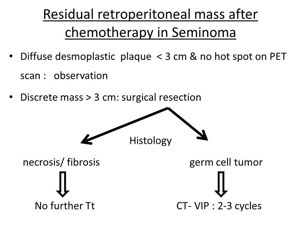 Residual retroperitoneal mass after chemotherapy in Seminoma