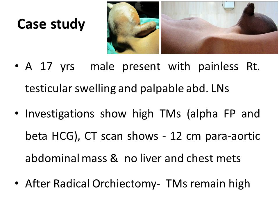 Case study A 17 yrs male present with painless Rt. testicular swelling and palpable abd. LNs.