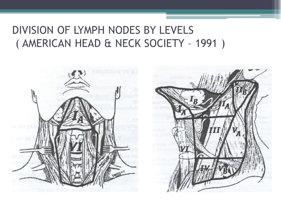 DIVISION OF LYMPH NODES BY LEVELS ( AMERICAN HEAD & NECK SOCIETY – 1991 )