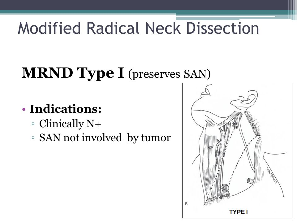 Modified Radical Neck Dissection