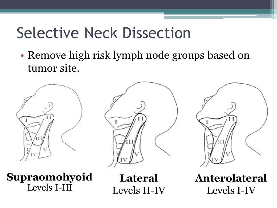 Selective Neck Dissection
