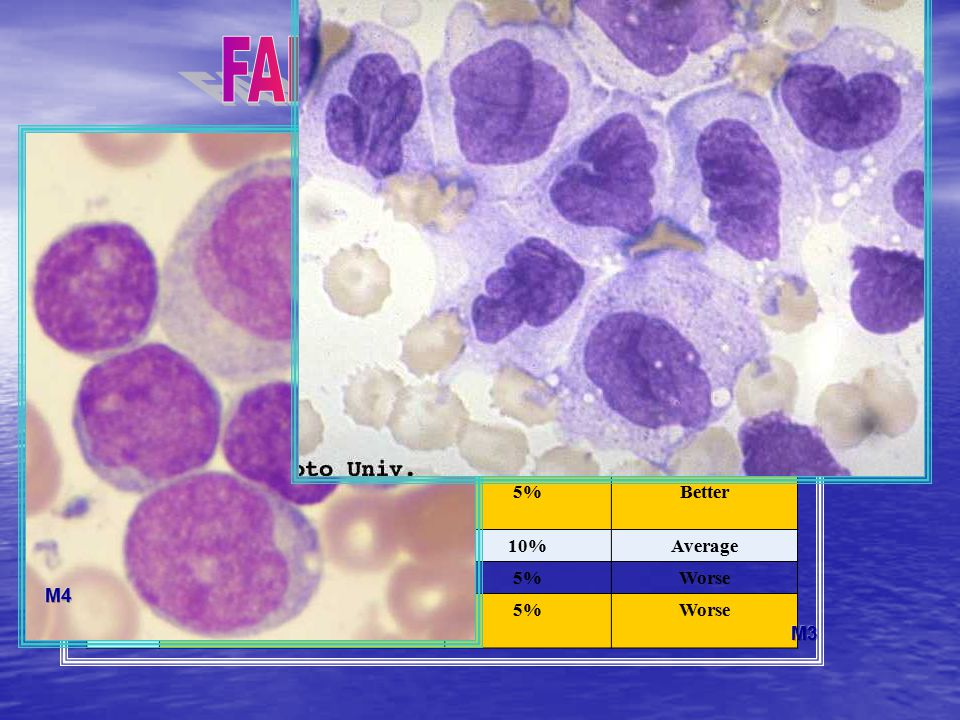 FAB classification M0 Prognosis compared to average for AML