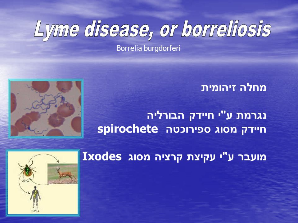 Lyme disease, or borreliosis