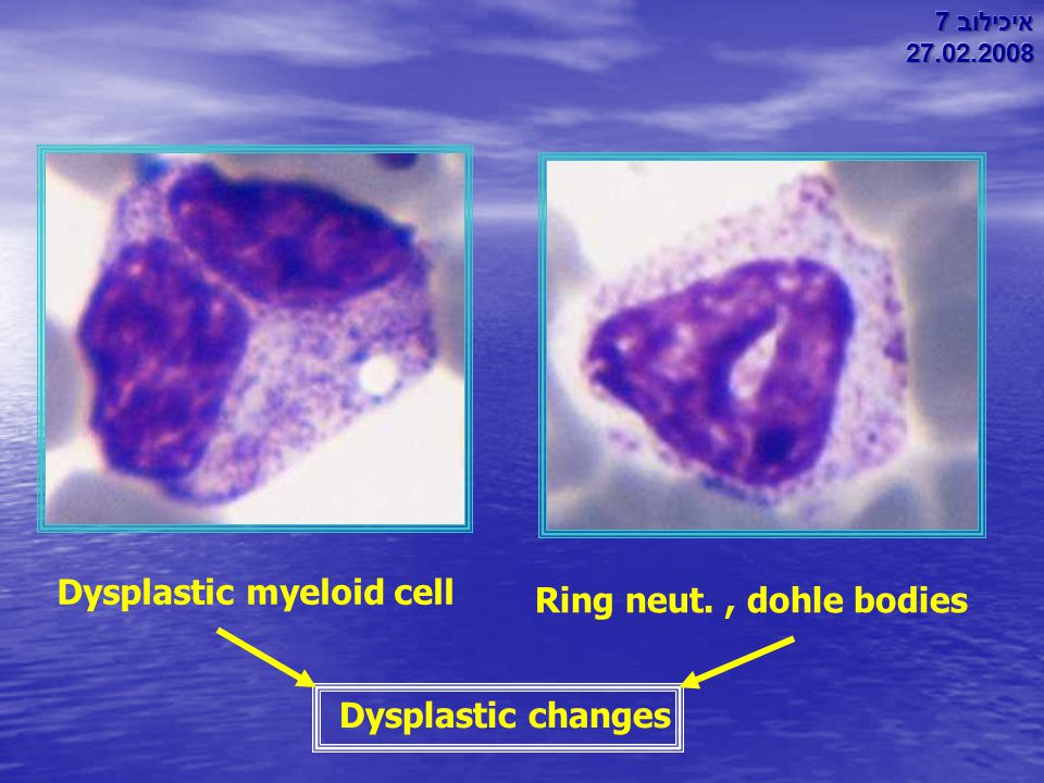 Dysplastic myeloid cell Ring neut. , dohle bodies