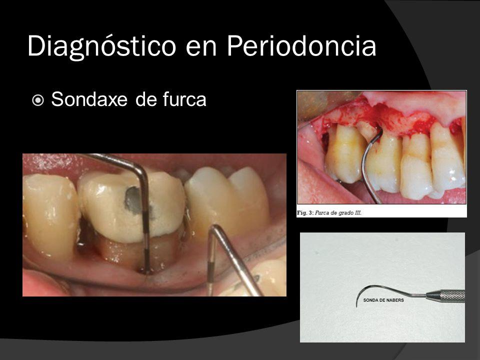 Diagnóstico en Periodoncia