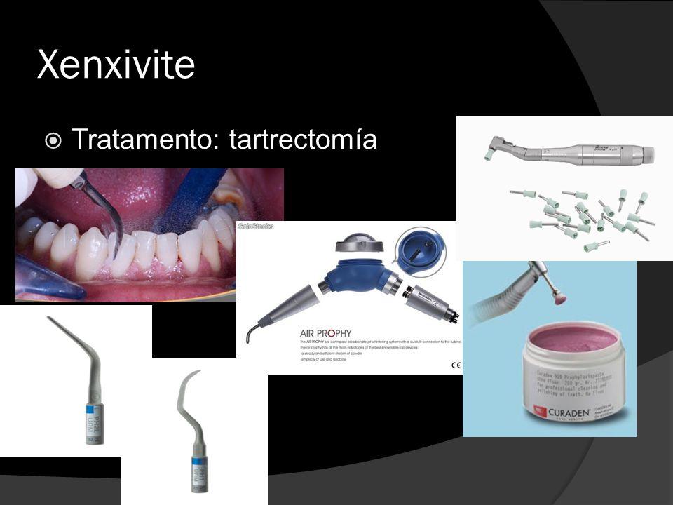 Xenxivite Tratamento: tartrectomía