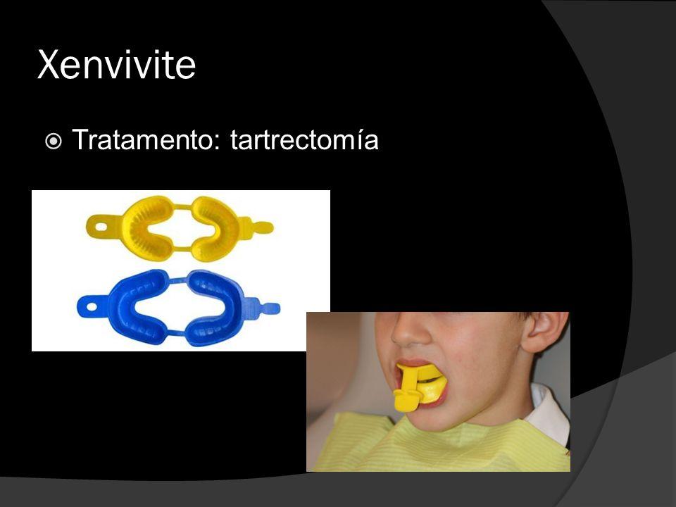 Xenvivite Tratamento: tartrectomía