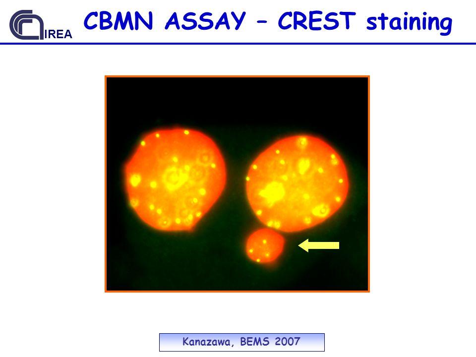 CBMN ASSAY – CREST staining