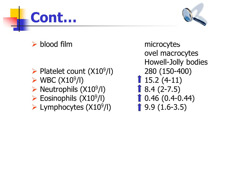 Cont… blood film microcytes ovel macrocytes Howell-Jolly bodies