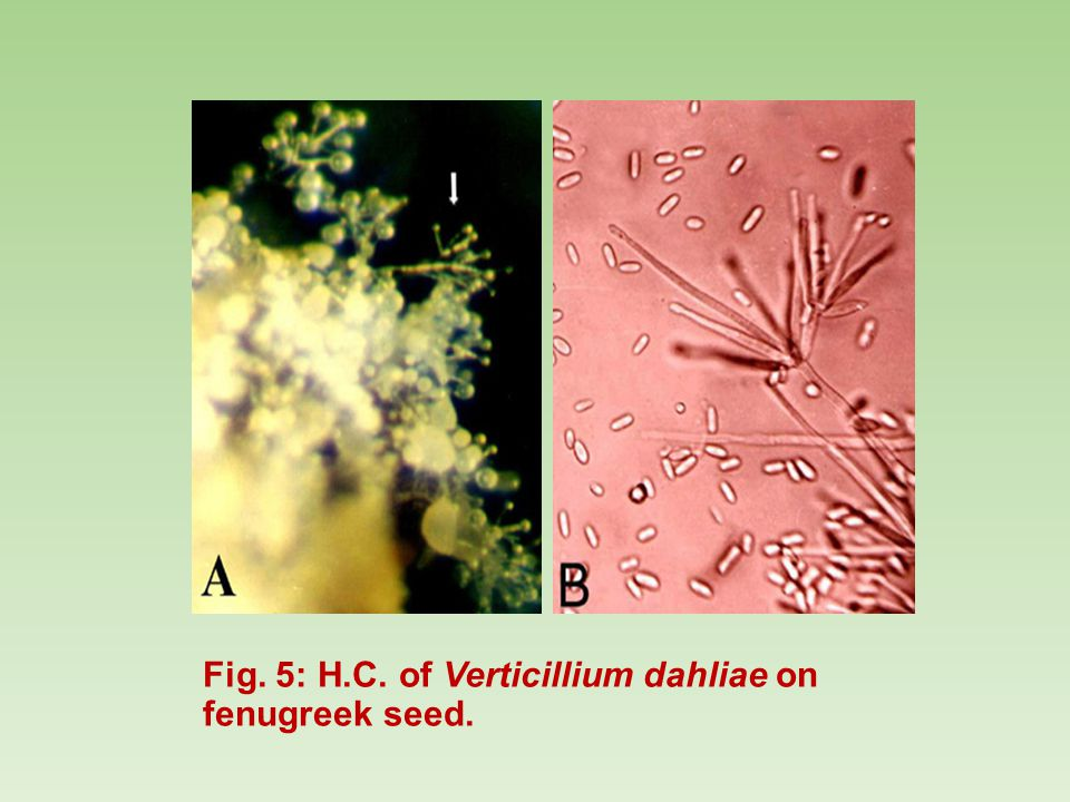 Fig. 5: H.C. of Verticillium dahliae on fenugreek seed.