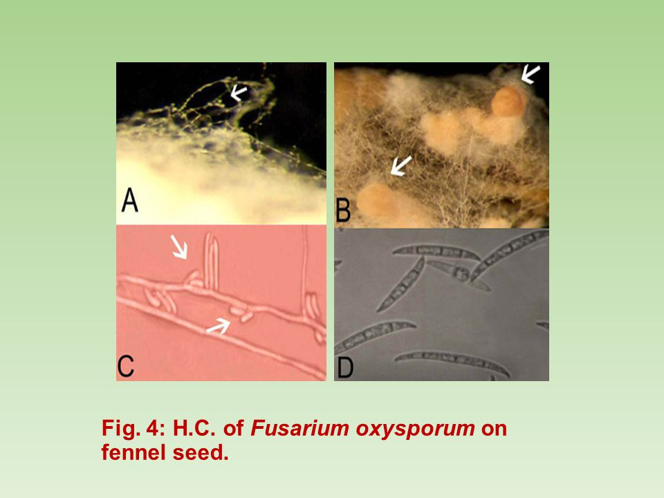 Fig. 4: H.C. of Fusarium oxysporum on fennel seed.