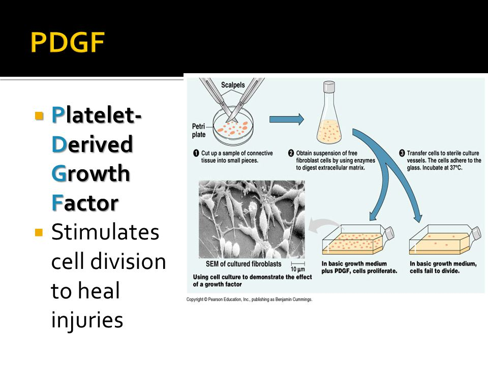 PDGF Platelet-Derived Growth Factor