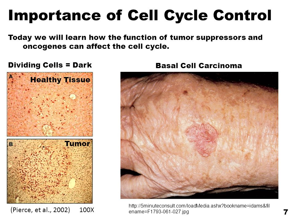 Importance of Cell Cycle Control