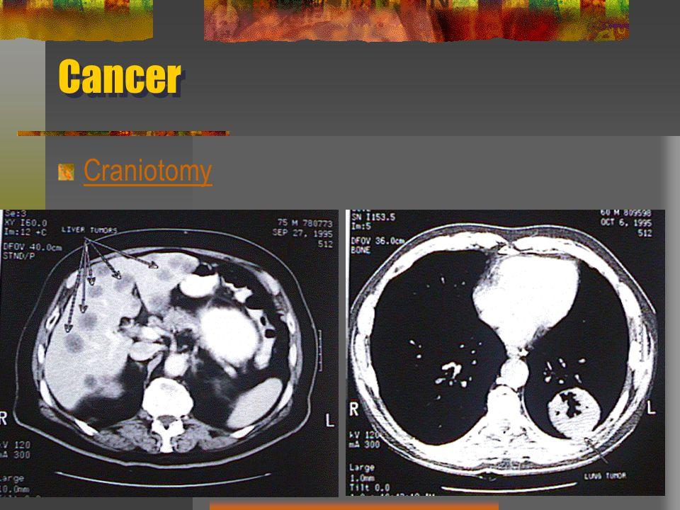Cancer Craniotomy