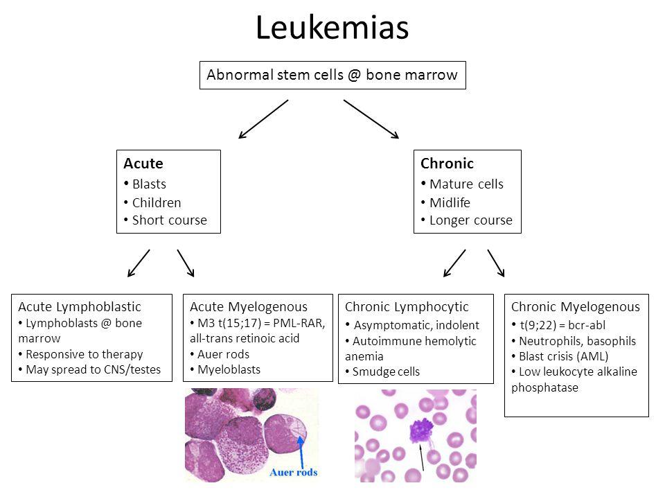 Abnormal stem cells @ bone marrow