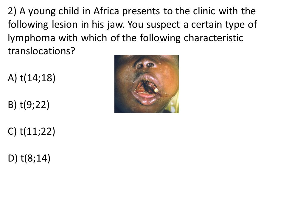 2) A young child in Africa presents to the clinic with the following lesion in his jaw. You suspect a certain type of lymphoma with which of the following characteristic translocations