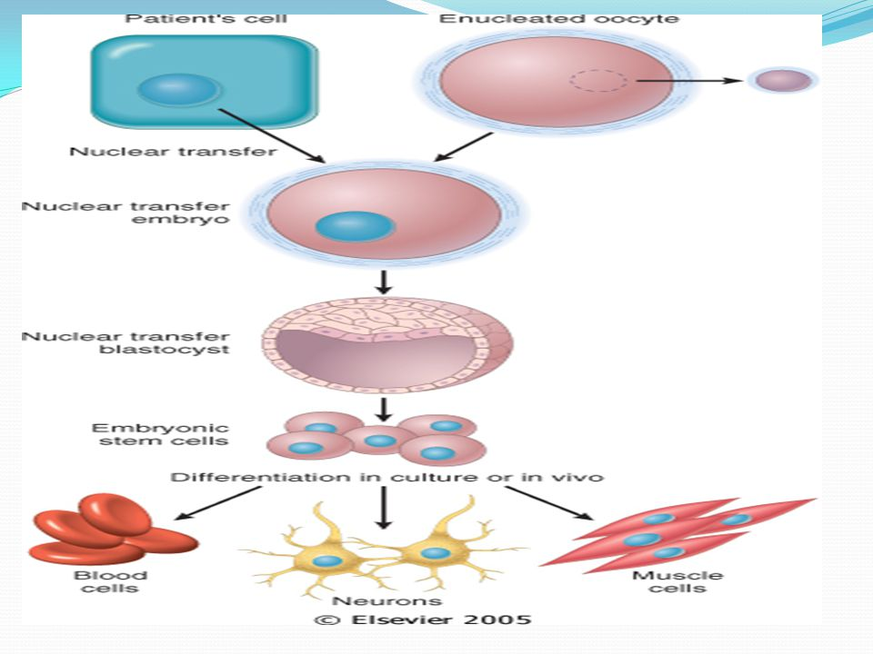 Figure 3-4 Steps involved in therapeutic cloning, using embryonic stem cells (ES cells) for cell therapy.
