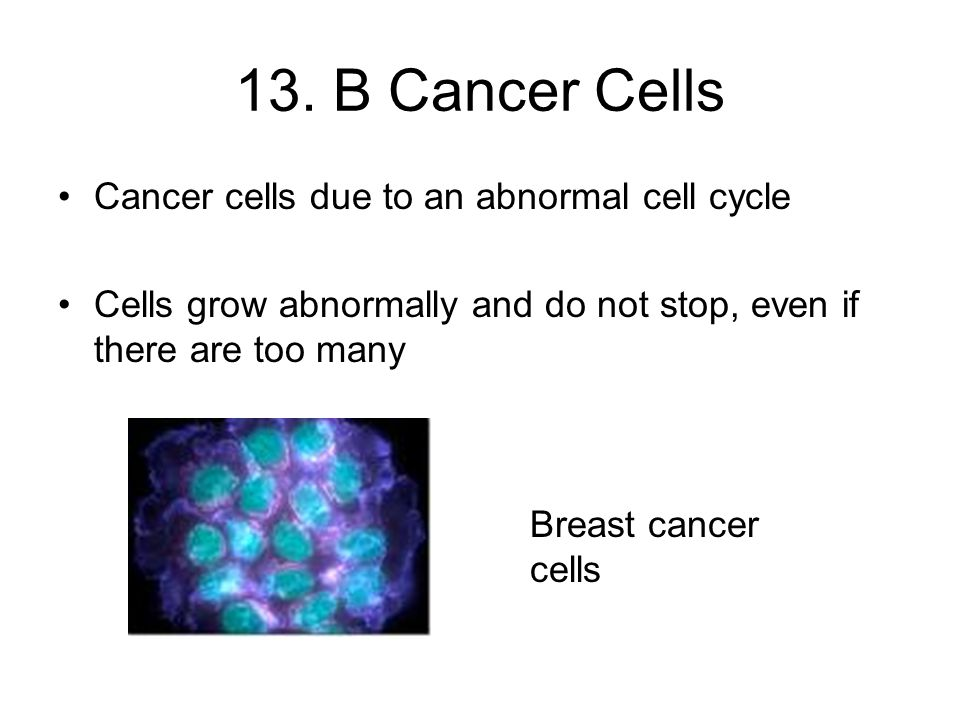 13. B Cancer Cells Cancer cells due to an abnormal cell cycle