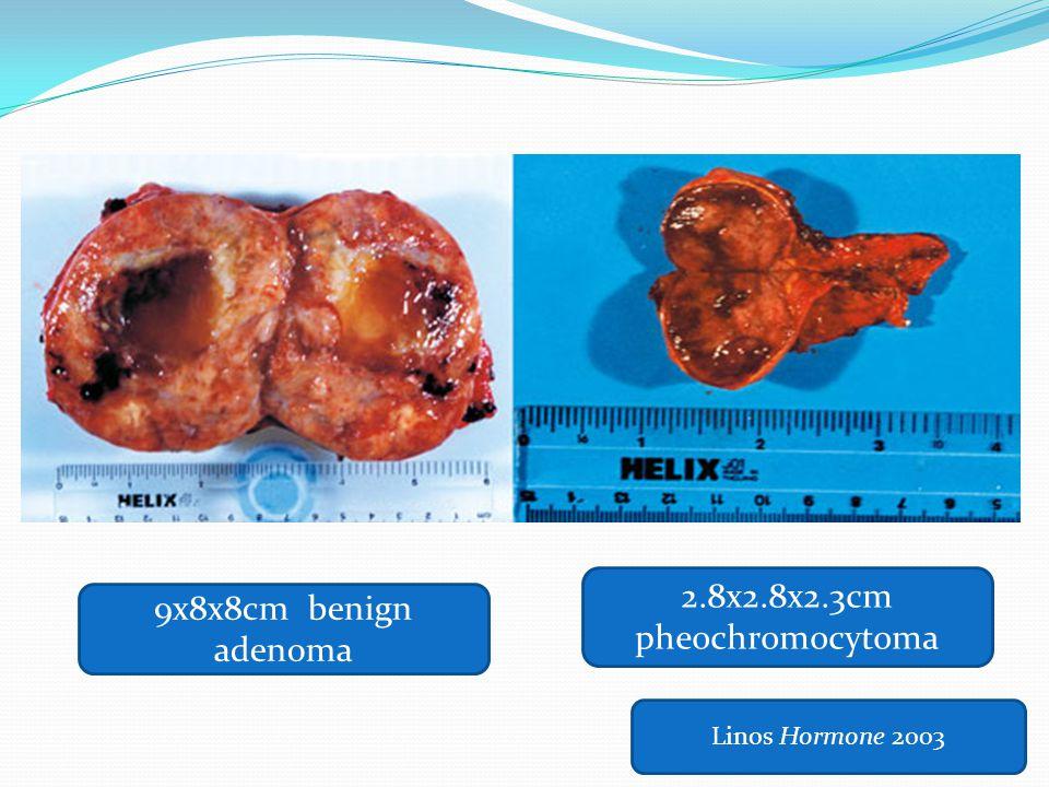 2.8x2.8x2.3cm pheochromocytoma