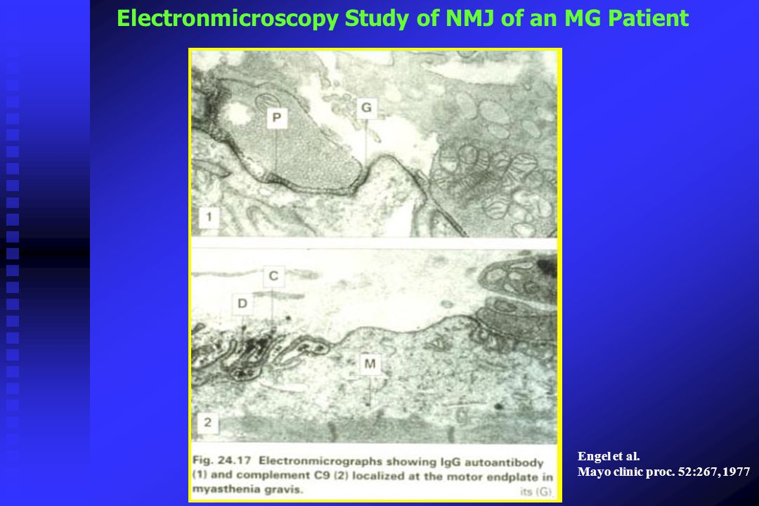 Electronmicroscopy Study of NMJ of an MG Patient