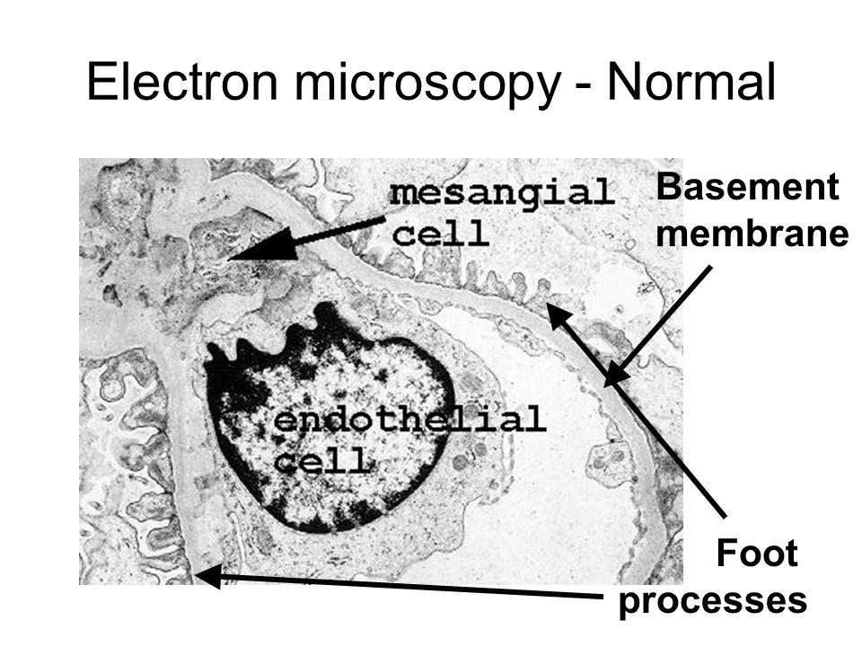 Electron microscopy - Normal