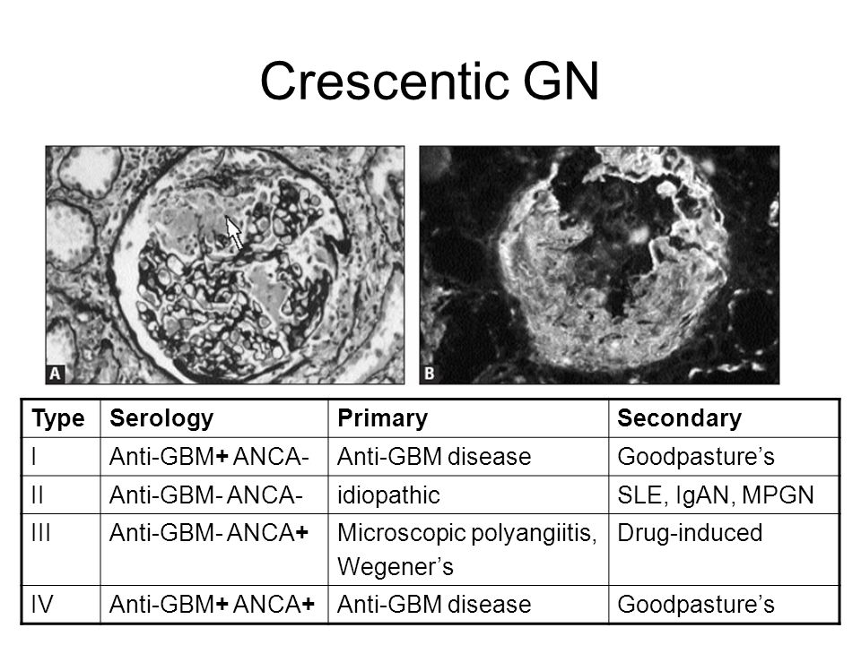Crescentic GN Type Serology Primary Secondary I Anti-GBM+ ANCA-