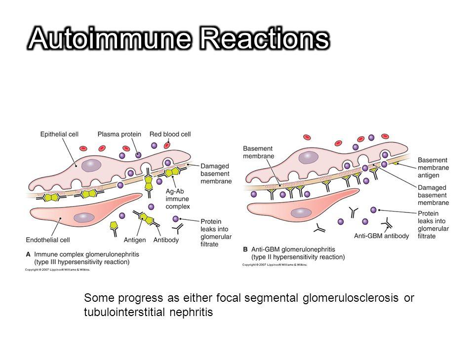 Autoimmune Reactions Some progress as either focal segmental glomerulosclerosis or. tubulointerstitial nephritis.