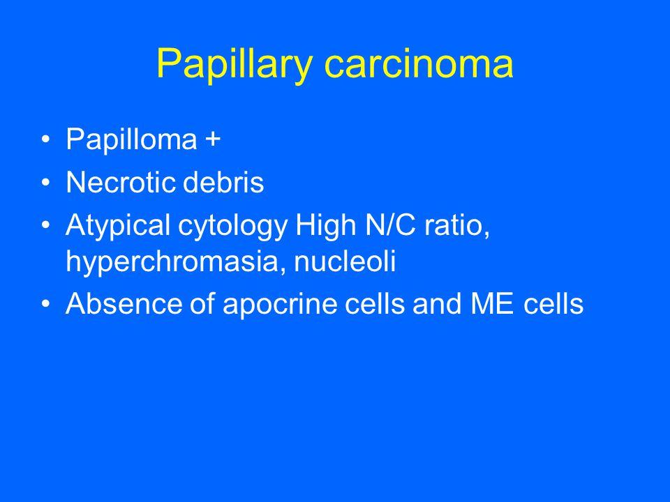 Papillary carcinoma Papilloma + Necrotic debris