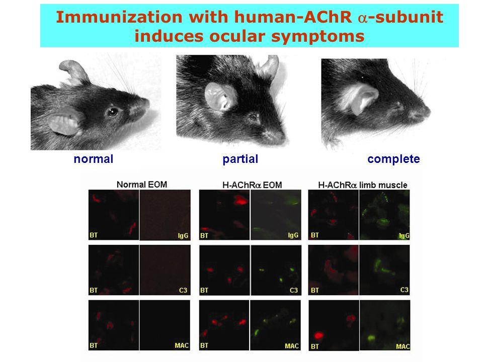 Immunization with human-AChR -subunit induces ocular symptoms