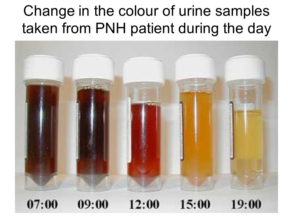 Change in the colour of urine samples taken from PNH patient during the day