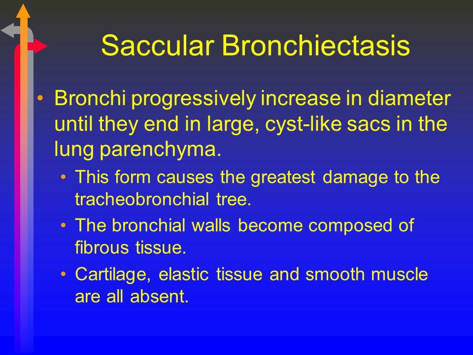 Saccular Bronchiectasis